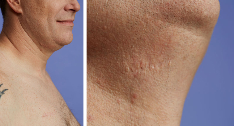 A post-procedure close-up of James's collarbone and chin