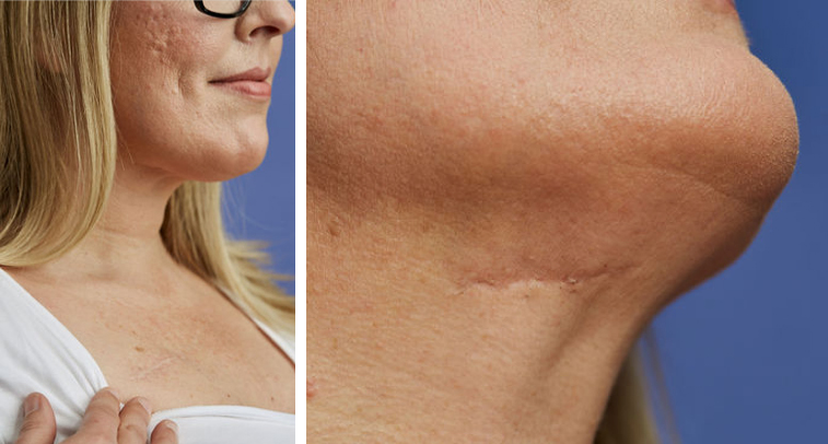 A post-procedure close-up of Karen's collarbone and chin
